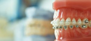 Mistakes People Make When Choosing an Orthodontist